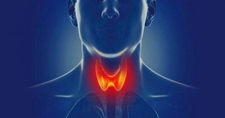 Tiroides puede causar descontrol del cuerpo
