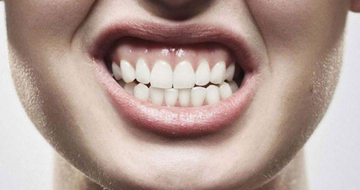 Rechinan los dientes el 80% de los mexicanos