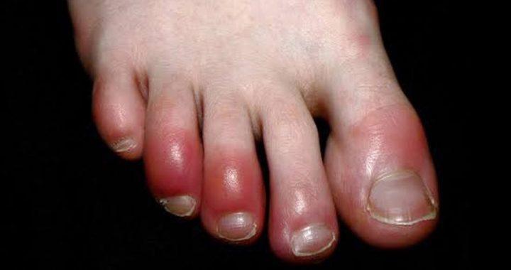 ¿Qué son los dedos Covid? ¡Aquí te lo decimos!